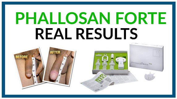 phallosan forte real before after results